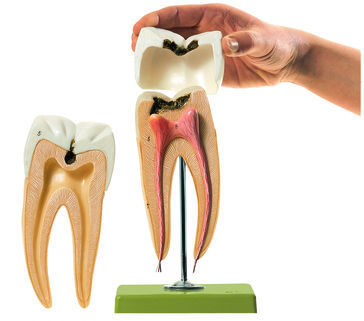 Molar tooth anatomy