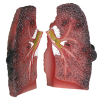 Cough Up a Lung Model
