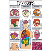 AIDS and Opportunistic Diseases
