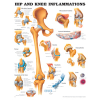 Anatomical Hip and Knee Inflammations Chart