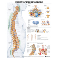 Anatomical Chart- Human Spine Disorders