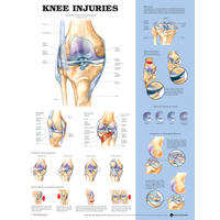 Anatomical Chart- Knee Injuries