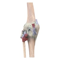Anatomical Model- Knee Joint extended