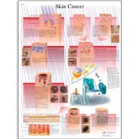 Anatomical Skin Cancer Chart