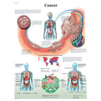 Anatomical Models and Cancer Charts