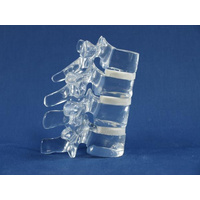 Acrylic Thoracic Spine