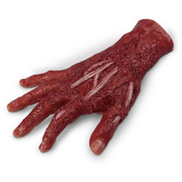 Wound - Chemical Burn, 4th Degree, Right Hand