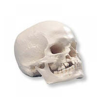 Anatomical Model- Human Skull Model with Cleft Jaw and Palate