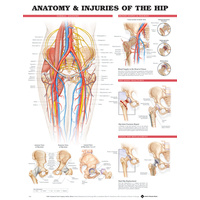 Anatomical Injuries of the Hip Chart