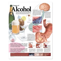 Anatomical Chart- Dangers of Alcohol