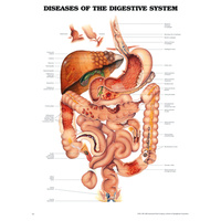 Diseases of the Digestive System (Poster - Rigid Lamination)
