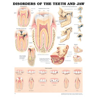 Anatomical Disorders of the Teeth and Jaw Chart