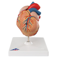 Anatomical Model- Classic Heart with Left Ventricular Hypertrophy (LVH), 2 part