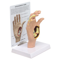 Anatomical Osteoarthritis Hand Model