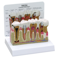 Anatomical Model- Teeth