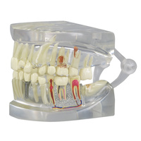 Anatomical Model- Clear Human Jaw with Teeth