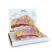 Anatomical Model- Breast Cross-section