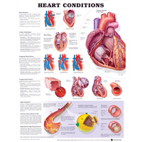Anatomical Heart Conditions Chart