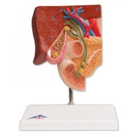 Anatomical Model- Gallstone Model