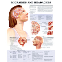 Migraines and Headaches (Poster - Rigid Lamination - Damaged)
