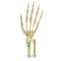 Somso Skeleton of the Hand with Base of Forearm