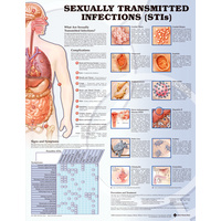 Anatomical Chart- Sexually Transmitted Infections