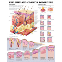 Anatomical Chart- The Skin and Common Disorders