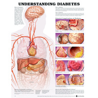 Anatomical Chart- Understanding Diabetes