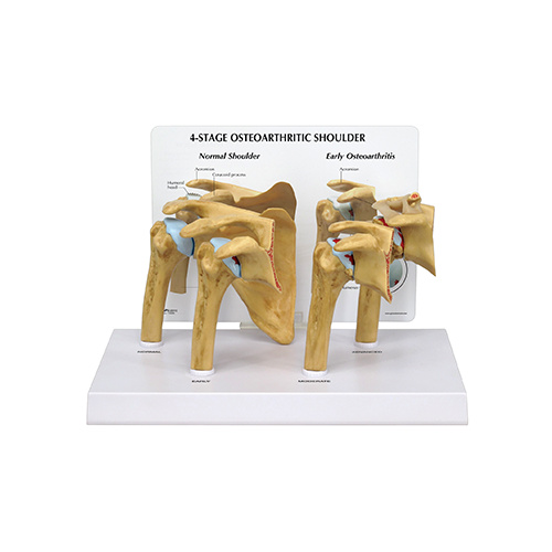 Anatomical 4 Stage Osteoarthritis Shoulder Model