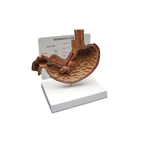 Anatomical Stomach Cancer Model