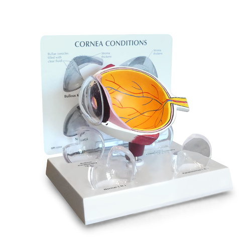 Anatomical Model- Cornea Eye Cross-Section