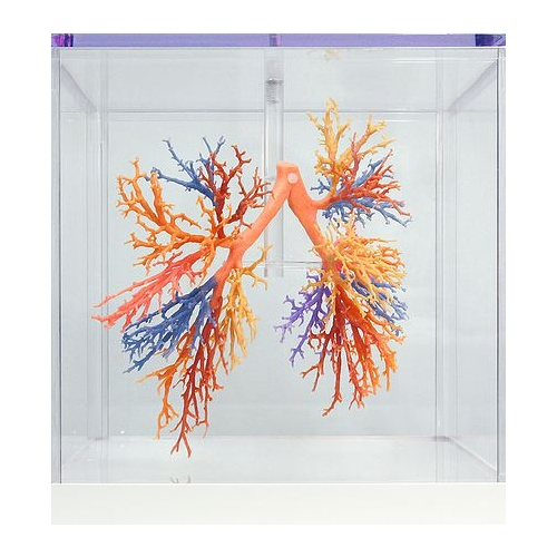 Anatomical Model- Bronchial Tree